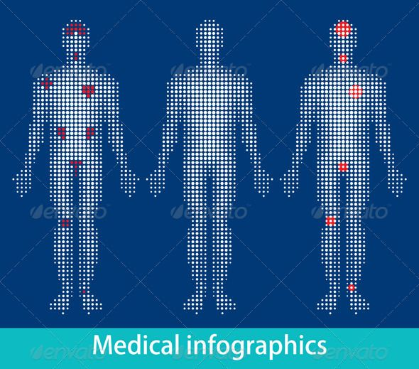 Medical Info-Graphics  #GraphicRiver         Vector Human Body With Areas Of Pain. Ideal for a medical brochure, poster or other graphic design project, in a website projects . EPS8 in dots     Created: 7October11 GraphicsFilesIncluded: JPGImage #VectorEPS #VectorEPS #JPGImage Layered: No MinimumAdobeCSVersion: CS Tags: accident #agony #anatomy #arthritis #back #backbone #biological #body #chest #feet #graphic #health #heart #human #inflammation #injury #joint #knee #leg #medical #nerve…