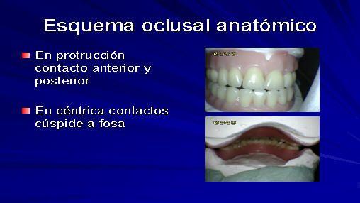 la oclusión equilibrada bilateral (esquema oclusal anatómico)