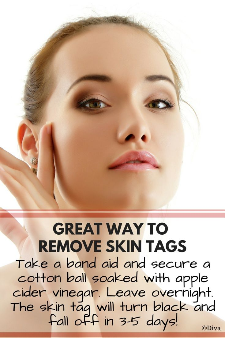 Remove Skin Tags with Apple Cider Vinegar -  Take a tiny cotton ball and soak into organic apple cider vinegar. Secure the cotton ball with a band aid and leave overnight. Your #skin #tag should turn black and fall off in 3-5 days without bleeding or any scars. If the tag doesn't turn black, repeat the process one more day. Do not pick on the tag! Discontinue if there is skin irritation.