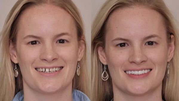 Make your trip to the provided web link to correct you bite with the help of expert cosmetic dentist Sam Muslin. Try the new Overbite Correction without surgery treatment to improvise your smile in effective manner.   #OverbiteCorrectionwithoutsurgery