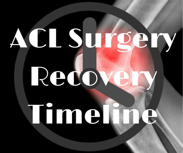 ACL Surgery Recovery Timeline. This article will give you a guideline for when you can expect to reach certain milestones such as walking, jogging and competing in your sport. Click the link to read on when you can expect to return after an ACL reconstruction
