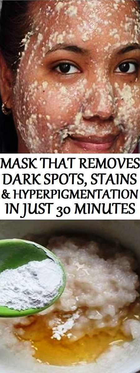 NO MORE DARK SPOTS, STAINS AND HYPERPIGMENTATION: THISMASK REMOVES THEM ALL IN JUST 30 MINUTES .!