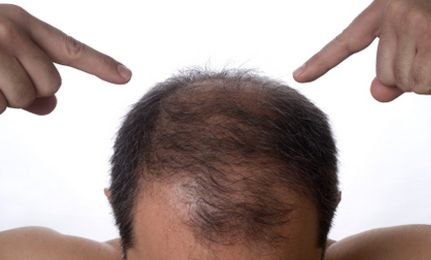 Natural Foods That Help Fight Alopecia