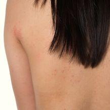 A két bőrbetegség hasonló panaszokkal jár: feszülő bőr, fájdalmas szárazság, viszketés. Így enyhítsen a tüneteken