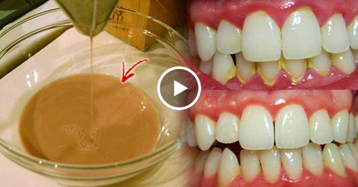 Жидкость для полоскания рта, которая помогает удалить зубной камень является лучшим способом, чтобы дополнить чистку зубов, так как это позволяет уменьшить зубной налета. Жидкость для полоскания рта является одним из самых важных частей всего процесса гигиены зубов, так как он помогает устранить все бактерии и микробы! Уход за полостью рта имеет жизненно важное значение для …