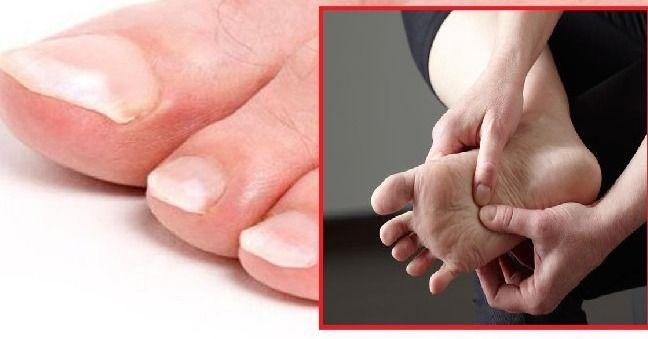 I piedi ci dicono molto sul nostro stato di salute, basta osservarli attentamente e correre ai ripari in caso di anomalie delle unghie e della cute