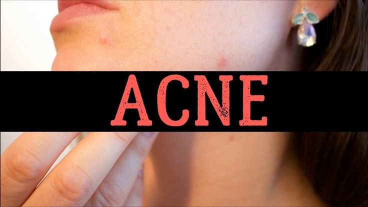 20 Foods That Cause Acne Breakout In Adults – List