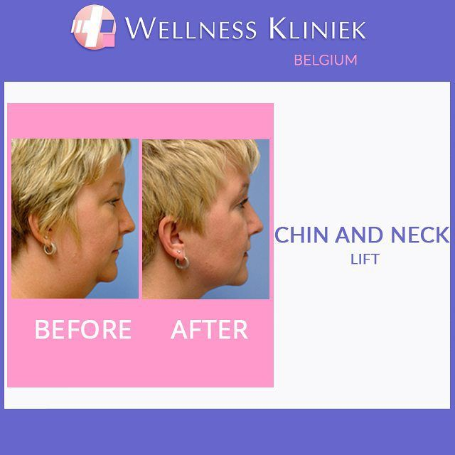 Plastic surgery before and after - Wellness_Kliniek Belgium Chin and neck correction: #chin augmentation #injectables Fillers. Visit the #wellnesskliniek for lots of info, before and after photos and full #pricelist on: http://www.wellnesskliniek.com/en/plastic-surgery/Chin/chin-enhancement. Get all your queries about #chin enhancement #necklift correction #surgery answered. #plasticsurgery, #cosmeticsurgery, #chin, #neck, #before_and_after_photos, #cost, #liposuction