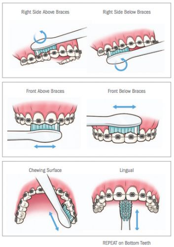 Oral #hygiene for dental #braces to removing #dental plaque. Visit:http://confidentdentalcare.in/