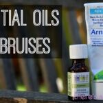The best essential oils for healing bruises
