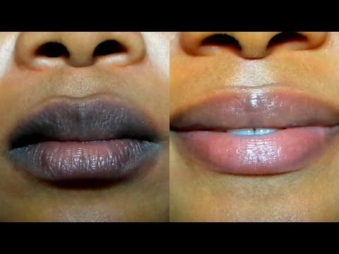 HOW TO LIGHTEN DARK LIPS NATURALLY /Fast Result/ GET PINK LIPS IN 2 DAYS