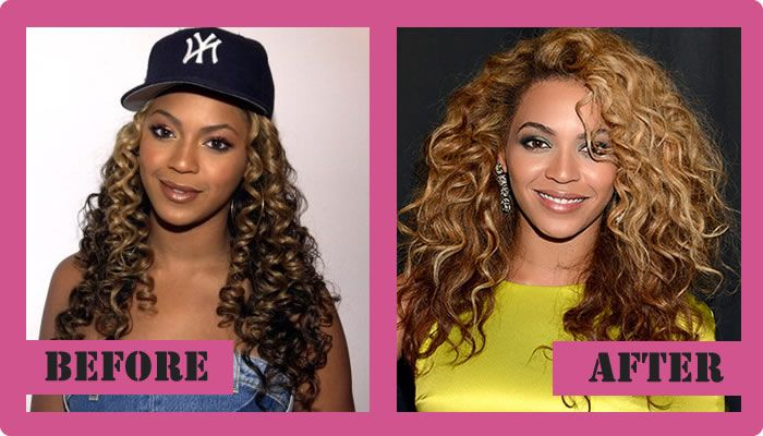 Beyonce Plastic Surgery Before And After Beyonce Plastic Surgery #Beyonceplasticsurgery #Beyonce #gossipmagazines
