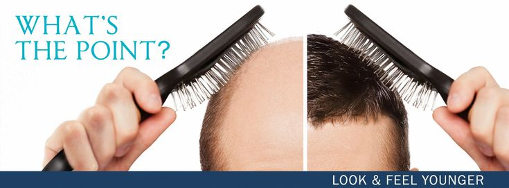 Hair Transplant Myths That Just Can't Be Ignored