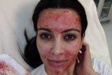 ¿Qué le pasó en la cara a Kim Kardashian?