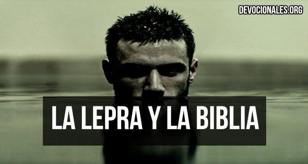 ¿Qué Es La Lepra y Por qué La Biblia La Menciona Tanto? †