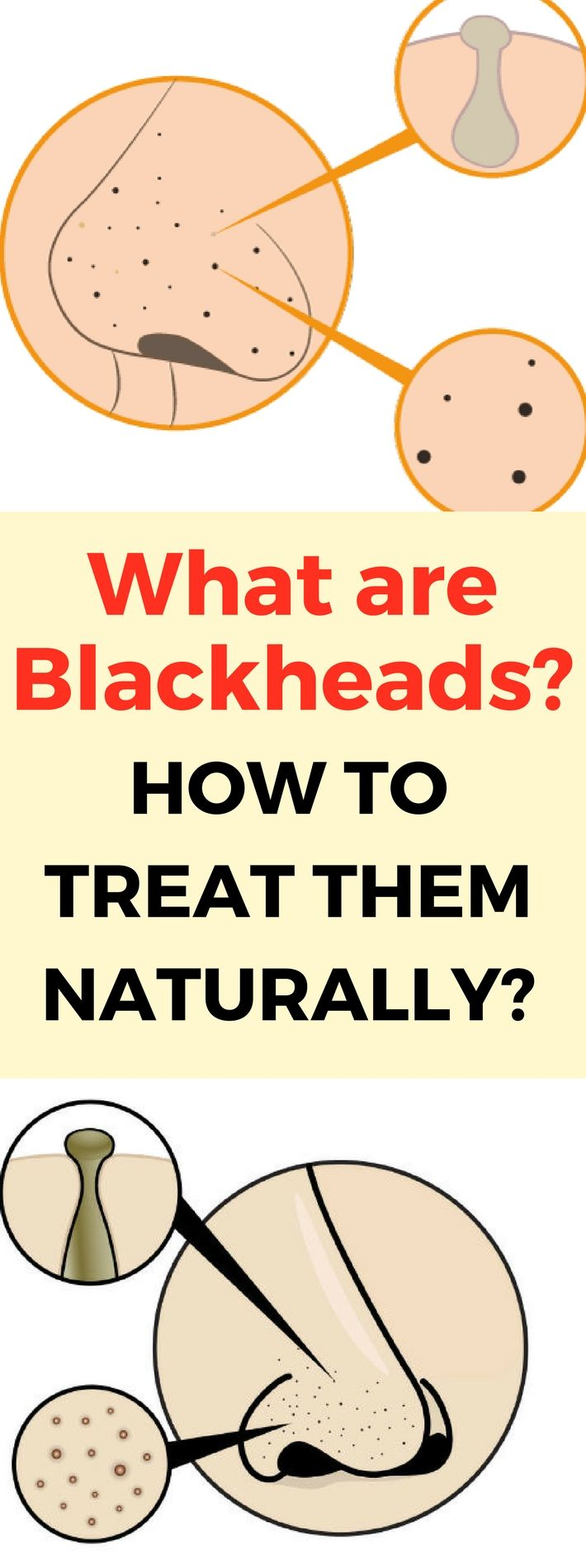 What are Blackheads and How to Treat Them Naturally?!!!