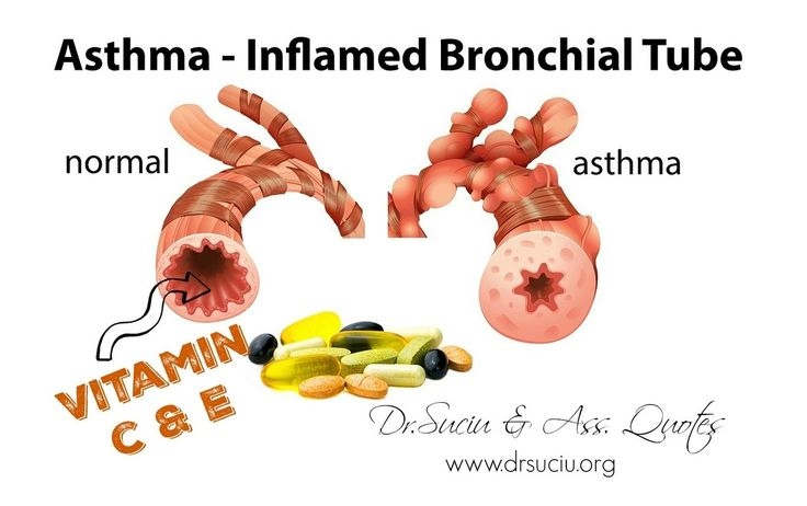 Vitamins C and E for asthma