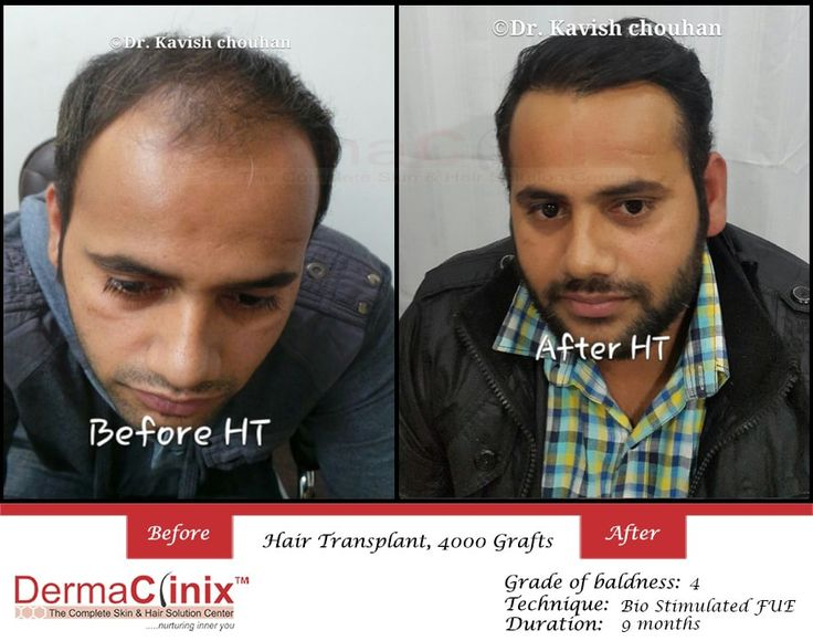 Best Hair Transplant Clinic in South Delhi     Hair transplantation is a surgical technique that moves hair follicles from a part of the body. If you are self-conscious about hair loss, we invite you to share your concerns with Dr. Kavish Chouhan & Dr. Amrendra Kumar. Hair transplant in Delhi is a permanent solution, however many patients experience great success in slowing their hair loss or growing new hair by using non-surgical products and procedures. Try DermaClinix for best hair…