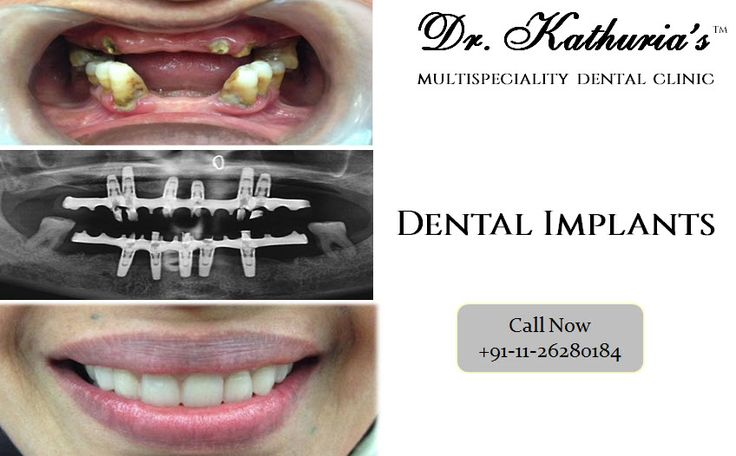 Full Mouth Rehabilitation with #DentalImplants at Dr. Kathuria's Multispeciality Dental Clinic #DrKathurias