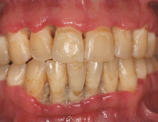 This is called ANUG: Acute Necrotizing Ulcerative Gingivitis, also known as trench mouth, is a common, non-contagious infection of the gums with sudden onset. The main features are painful, bleeding gums, and ulceration of inter-dental papillae (the sections of gum in-between the teeth).  Dentaltown - Patient Education Ideas