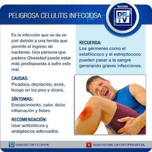 Conozca todo lo que necesita saber sobre la Peligrosa Celulitis Infecciosa