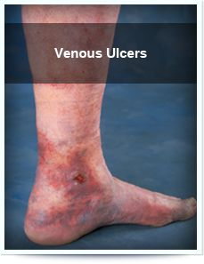 Natural Treatment For Venous Stasis Ulcers