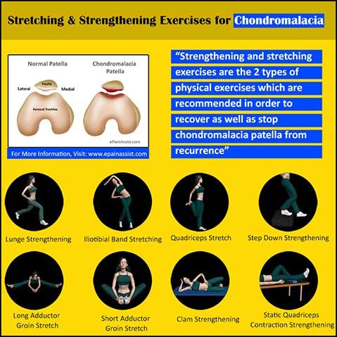 What is Sports Massage Therapy for Chondromalacia Patella? Read: http://www.epainassist.com/sports-injuries/knee-injuries/chondromalacia-patella-sports-massage-exercises-stretching-strengthening