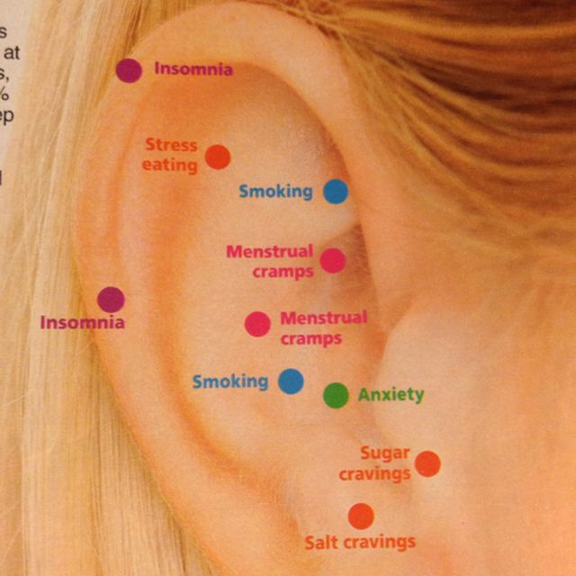 Acupressure points on your ear. From Woman's World magazine