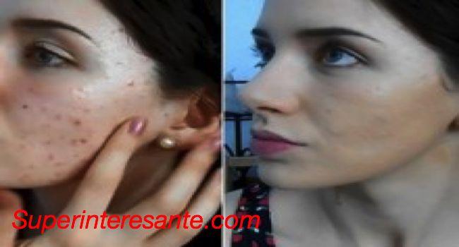 Esta joven comparte receta de Crema casera para el retiro de cicatrices! Los resultados son sorprendentes! – Super Interesantes