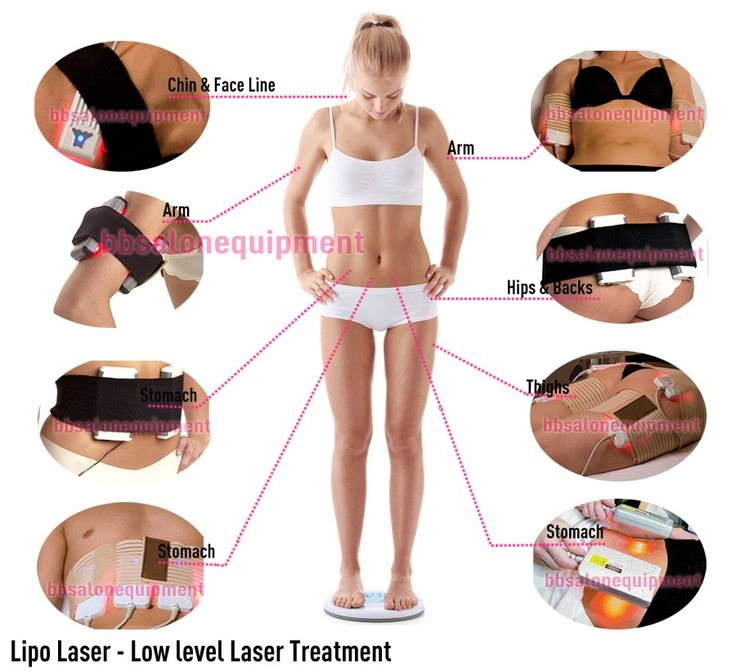 lipo laser treatment
