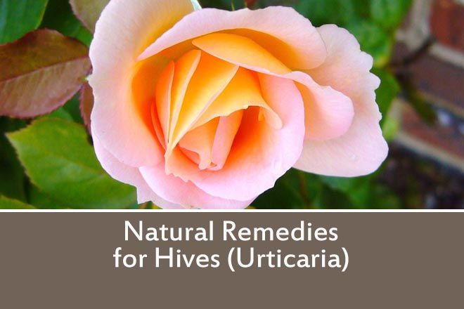 Quick Links: •What are Hives •Possible Remedies •Other points of interest •Other posts you may like What are Hives? Hives, or the medical term Urticaria is a skin rash with raised itchy bumps. ...