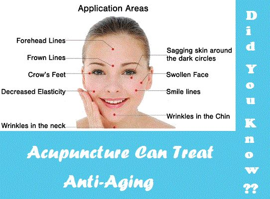 DidYouKnow ?? Acupuncture can help anti-aging !! Push your ...