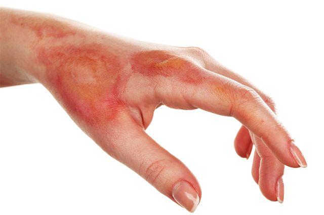 Remédios caseiros para tratar queimaduras - Remédio-Caseiro