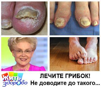 Советы Елены Малышевой: как вылечить грибок ног и ногтей за месяц! Здоровье, Красота, Народная медицина