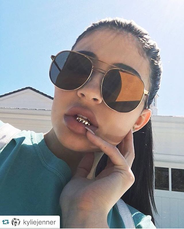 #WCW @KylieJenner Bottom 8 Rose Gold Grills brought to you by yours truly #GoldieRocks #KylieJenner #Grills #RoseGold