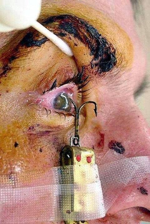 43 best fishing fails images on pinterest fails fish for Fish eye hook