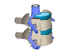 La hernia discal es una patología de la columna, provocada por el desplazamiento del disco intervertebral que comprime la raíz nerviosa produciendo lesiones neurológicas. Los ejercicios contribuyen y forman parte del tratamiento de esta patología, que la sufre una importante porcentaje de la población.
