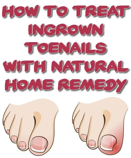 One of the most irritating and painful things ever is when you have to cut out your ingrown toenail. Ingrown nails are the cause of improper nail growth: practically, the nail tends to grow into th… ==