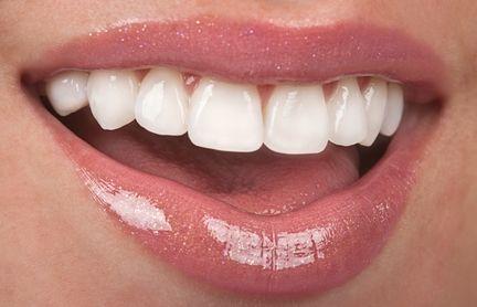 dr.adrianco@gmail.com Cali, Colombia, Que es un Diseño de Sonrisa? .What is a Smile Makeover? -- Cosmetic Dentistry