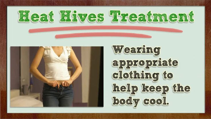 Heat Hives - Heat Hives Cure - Heat Hives Treatment - Heat Hives Home Remedy