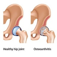Exercises for Osteoarthritis of the Hip - not 50 yet and falling apart!