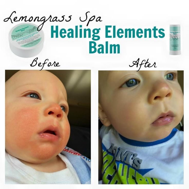 Testimony time: my son has had a horrible teething rash for months...I tried everything, including special steroid cream from his doctor, and nothing was working. Then I got my Lemongrass Spa Healing Balm.