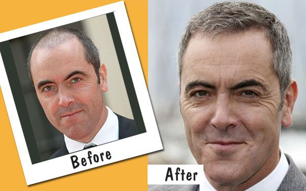 Celebrities Who Have Undergone Hair Transplant Surgery - Are you considering getting hair transplant surgery? If so, you should know many people have done it, and this includes a lot of celebrities.