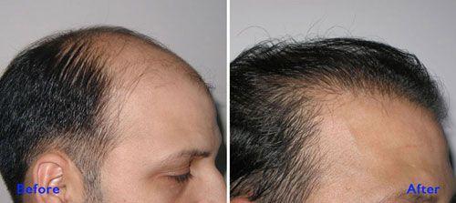 Hair Transplant And Cosmetic Center in Mumbai: History of Hair Loss Medicine- Minoxidil. +Dr Vai...