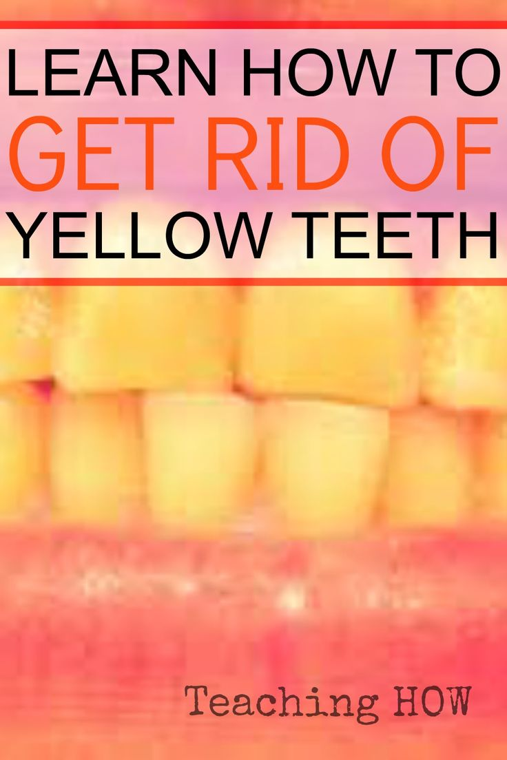 how to get rid of yellow teeth fast