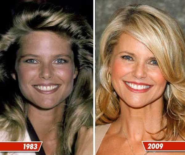 has christy brinkley had plastic surgery