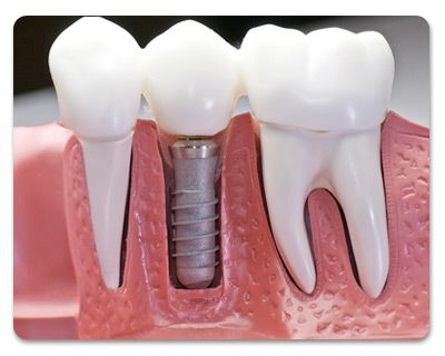 [Can I take out the teeth after they are fixed onto the implants?] --------------------------------------------------------------------------------- Fixed implant only can be removed by professional dentists in case some medical condition require its removal.❗ Although, there are removable tooth replacement options which can be taken out and can be cleaned outside of the mouth. #dentalimplant #dentistry #dentalclinic #cvitaminclinic #szeged #hungary