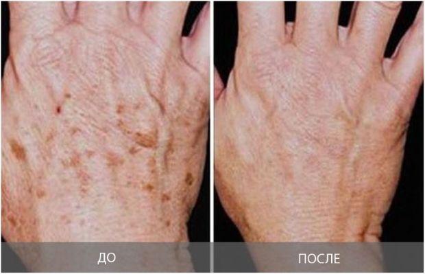 Как вывести коричневые пятна с кожи фото
