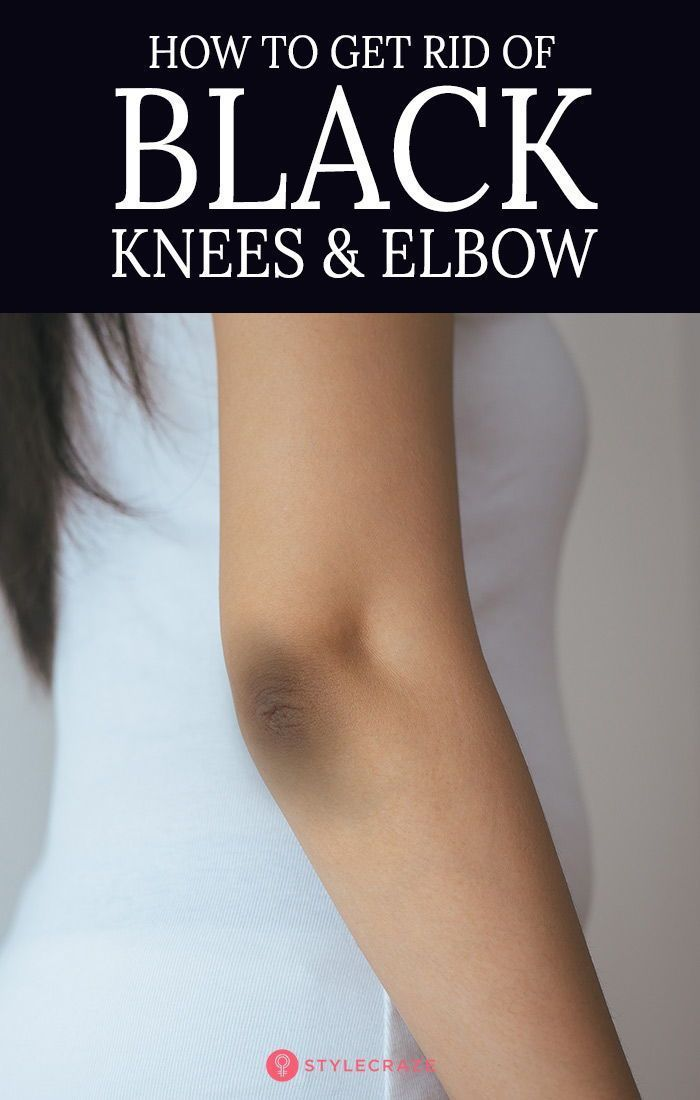 How To Get Rid Of Ingrown Hair On Elbow