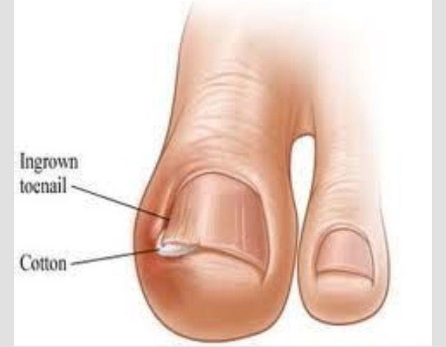 Ingrown Hair Bottom Foot